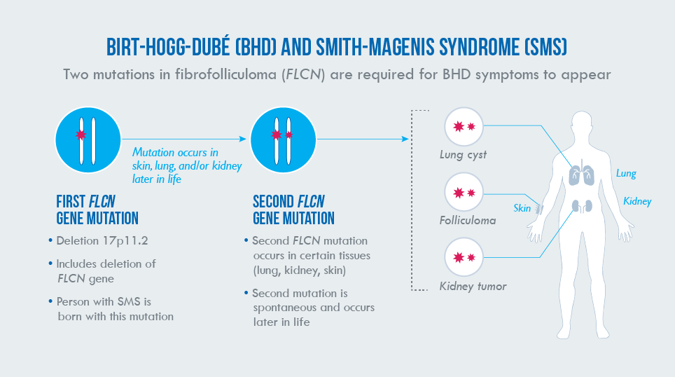 Graphic representing the two-hit hypothesis and how it applies to patients with SMS and their potential to develop BHD.